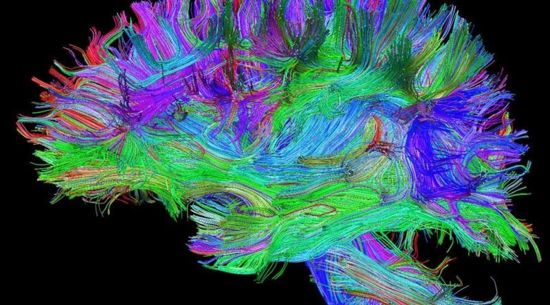 ricostruzione trattografica dei percorsi delle principali connessioni cerebrali eseguita con risonanza magnetica ad alto campo